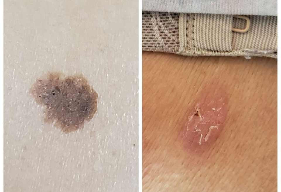 Laser Removal of Pigmented Lesions