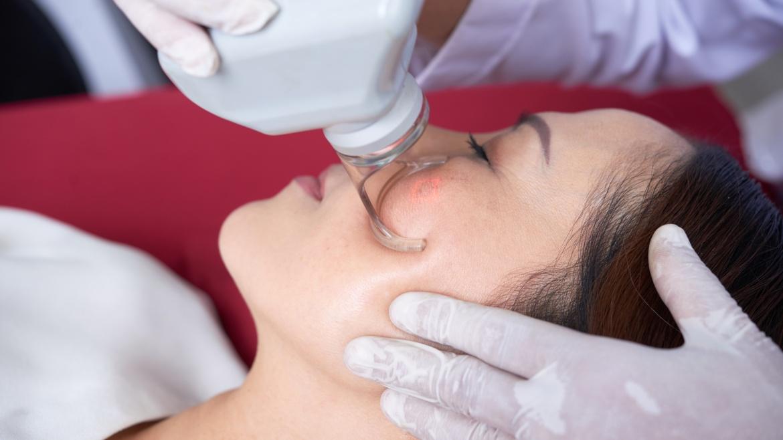 Laser Acne & Acne Scars Treatment